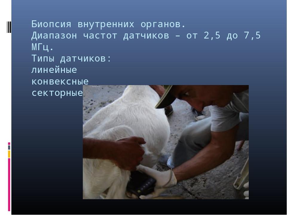 Биопсия внутренних органов. Диапазон частот датчиков – от 2,5 до 7,5 МГц. Тип...