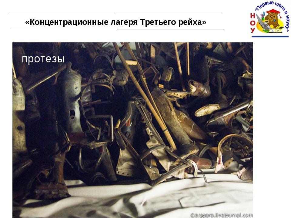 «Концентрационные лагеря Третьего рейха» протезы