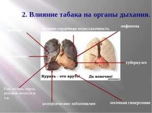 2. Влияние табака на органы дыхания. пневмония бронхит Рак легких, горла, рот