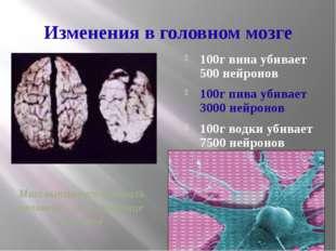 Изменения в головном мозге 100г вина убивает 500 нейронов 100г пива убивает 3