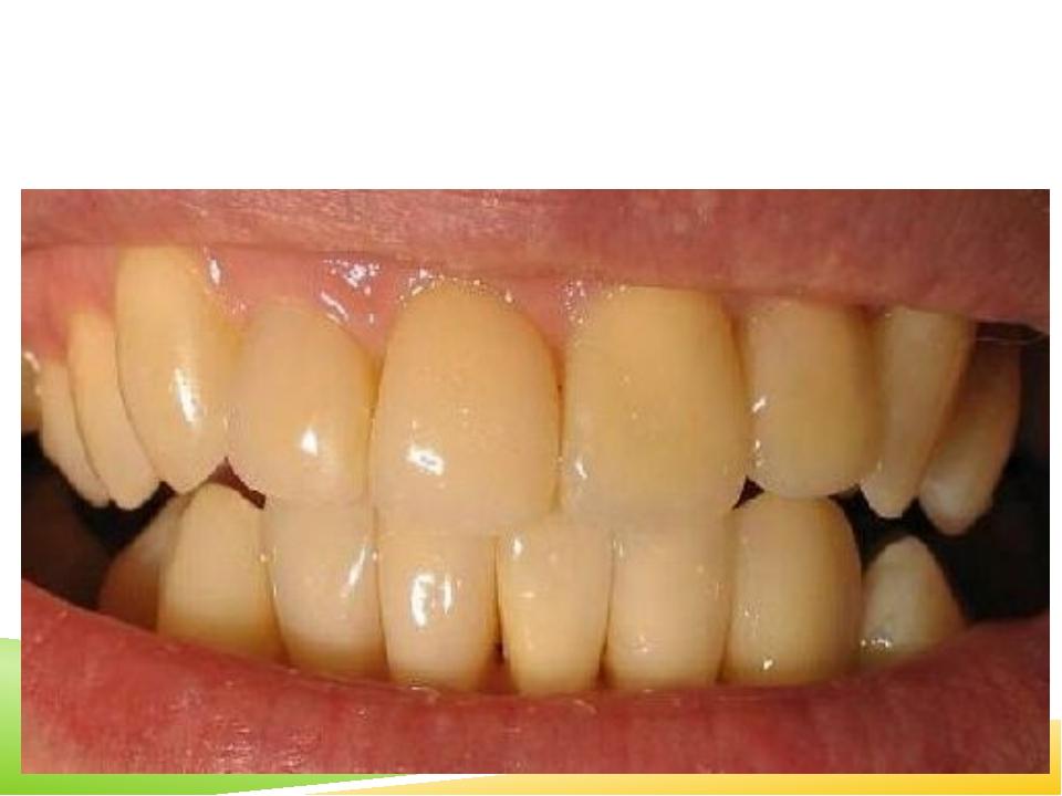 10 заблуждение. Людям с «жёлтыми» зубами необходимо срочно отбеливать эмаль,...