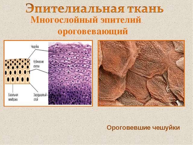 Многослойный эпителий ороговевающий Ороговевшие чешуйки