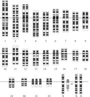 Кариотип (хромосомный набор) человека с синдромом Дауна. В 21-й паре три хромосомы вместо двух