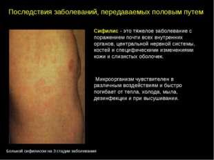 Сифилис - это тяжелое заболевание с поражением почти всех внутренних органов,