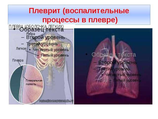 Плеврит (воспалительные процессы в плевре)