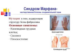 Синдром Марфана- наследственная болезнь соединительной ткани Мутация: в гене,