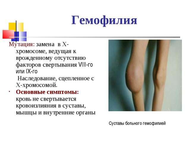 Гемофилия Мутация: замена в Х-хромосоме, ведущая к врожденному отсутствию фак...