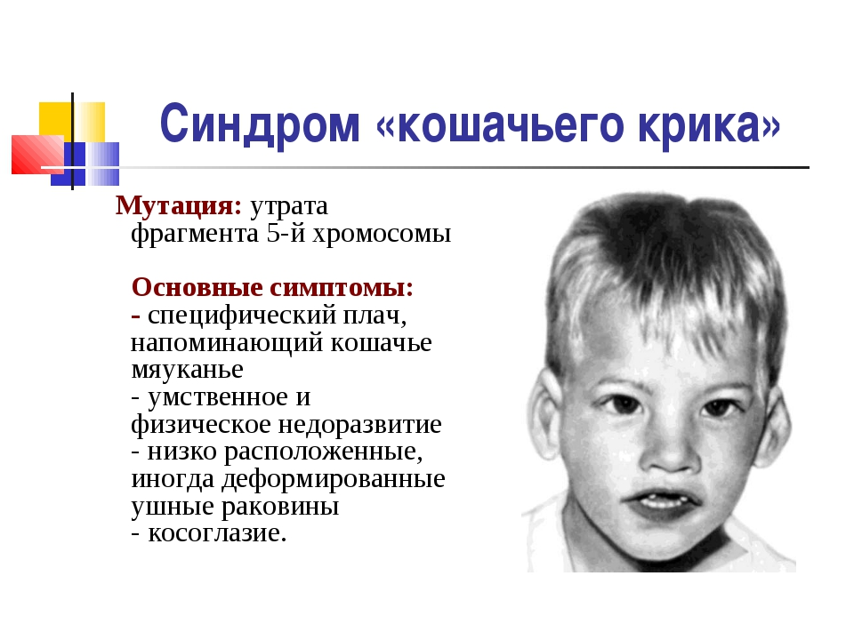 Синдром «кошачьего крика» Мутация: утрата фрагмента 5-й хромосомы Основные си...