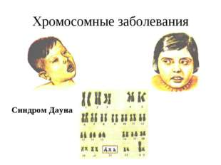 Хромосомные заболевания Синдром Дауна