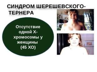 Складки кожи в области шеи— характерный признак болезни. На фото: девочка до