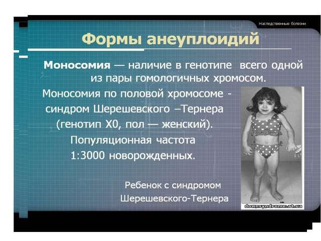 Основными причинами возникновения мутаций являются антропогенные факторы. Мед...