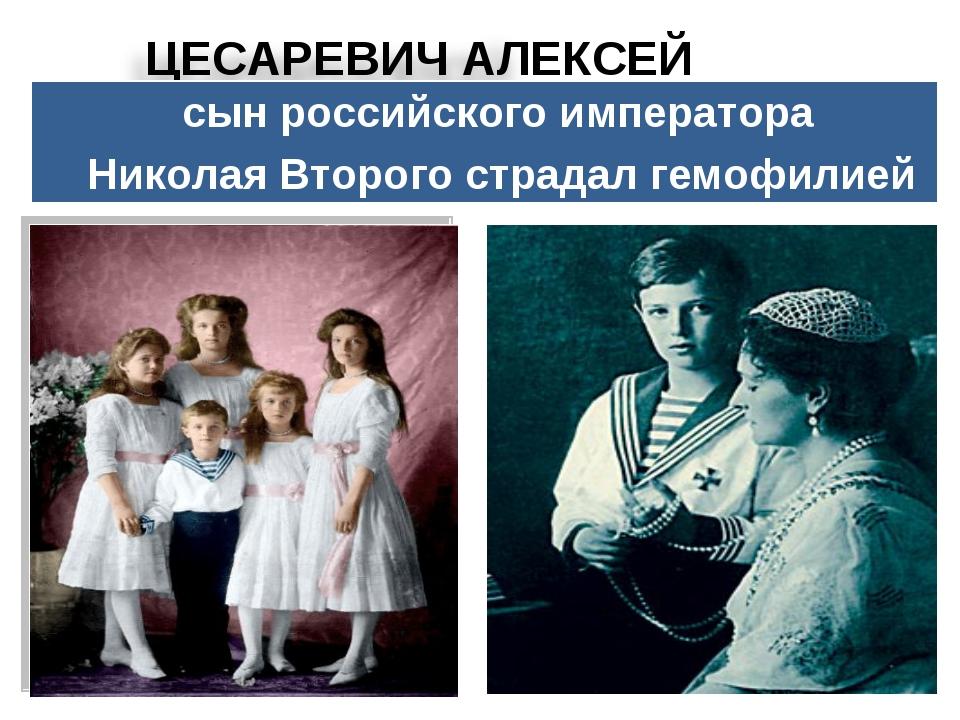 сын российского императора Николая Второго страдал гемофилией