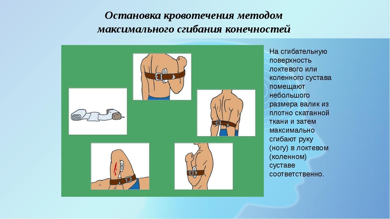 Остановка кровотечения методом максимального сгибания конечностей На сгибате...