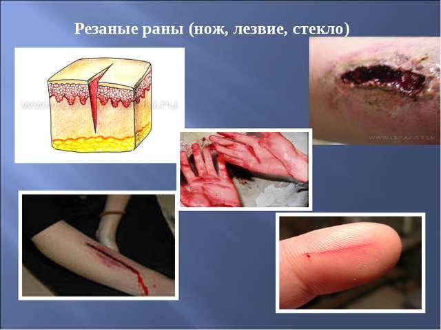 Резаные раны (нож, лезвие, стекло)