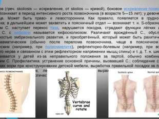 Сколиоз (греч. skoliosis — искривление, от skolios — кривой), боковое искрив