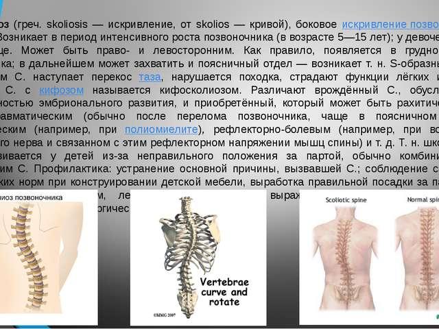 Сколиоз (греч. skoliosis — искривление, от skolios — кривой), боковое искрив...