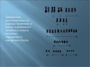 Хромосомы, расположенные по порядку величины, в клетке нормального человека (