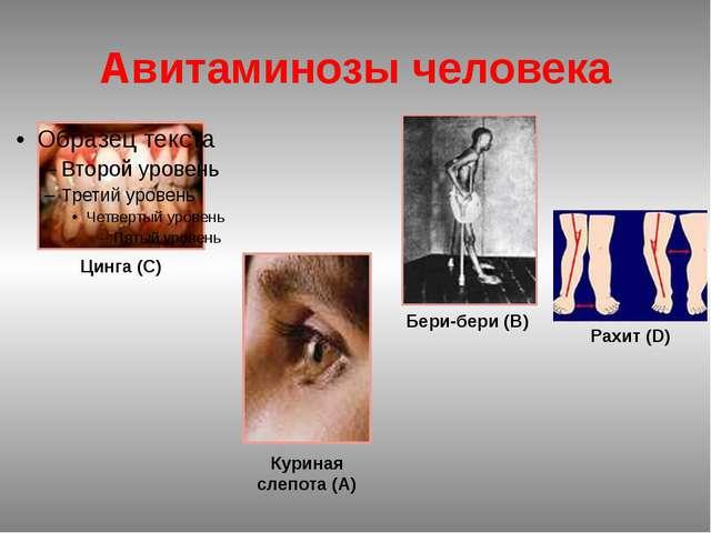 Цинга (С) Рахит (D) Бери-бери (В) Куриная слепота (А) Авитаминозы человека