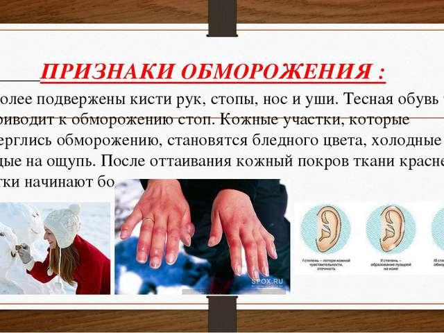 ПРИЗНАКИ ОБМОРОЖЕНИЯ : Наиболее подвержены кисти рук, стопы, нос и уши. Тесн...