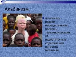 Альбинизм. Альбинизм - редкая наследственная болезнь, характеризующаяся недос