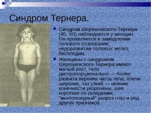 Синдром Тернера. Синдром Шерешевского-Тернера (45; Х0) наблюдается у женщин.