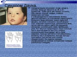 Синдром Дауна. Синдром Дауна возникает тогда, когда в клетках малыша имеется