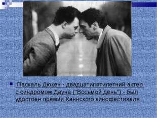 """Паскаль Дюкен - двадцатипятилетний актер с синдромом Дауна (""""Восьмой день"""")"""