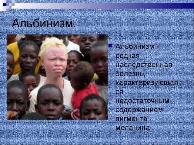 Альбинизм. Альбинизм - редкая наследственная болезнь, характеризующаяся недос...