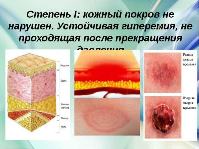 Степень I: кожный покров не нарушен. Устойчивая гиперемия, не проходящая посл...