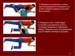 * 3. Надавите на согнутую в колене ногу пострадавшего и поверните его на бок.
