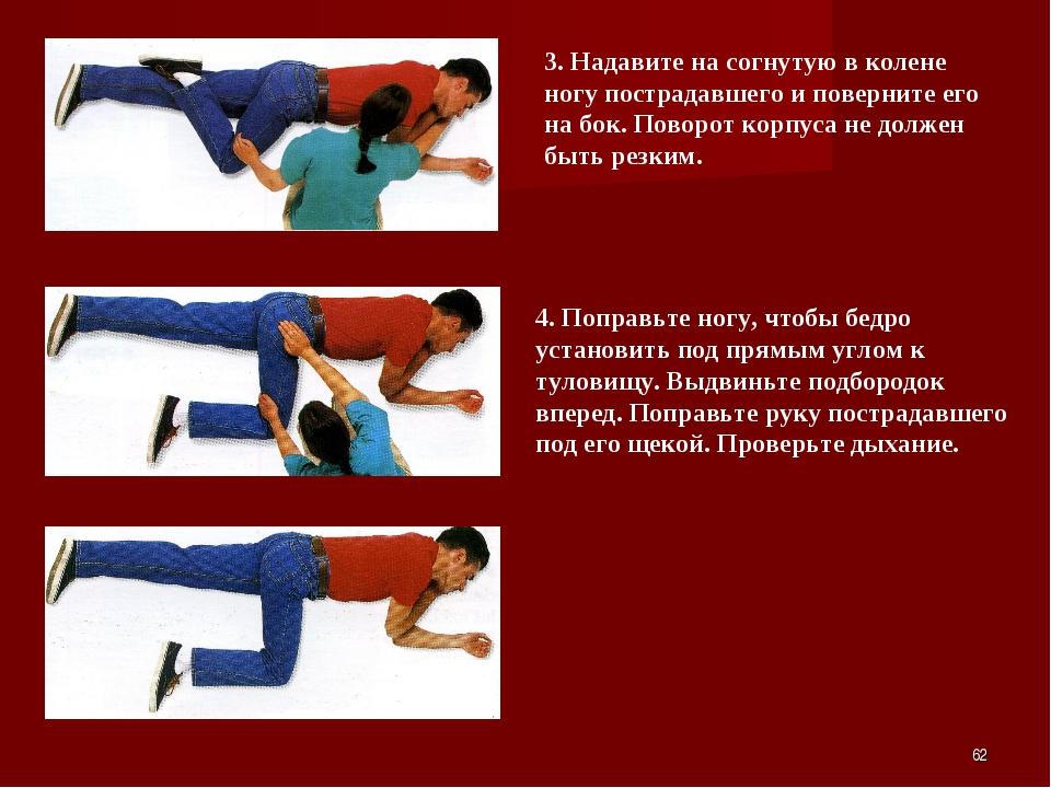 * 3. Надавите на согнутую в колене ногу пострадавшего и поверните его на бок....