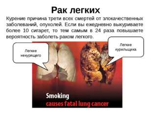 Рак легких Курение причина трети всех смертей от злокачественных заболеваний,