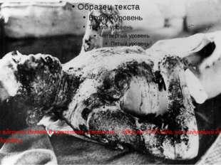 Жертва ядерного взрыва в карантине, Хиросима, 7 августа 1945 года, на следую