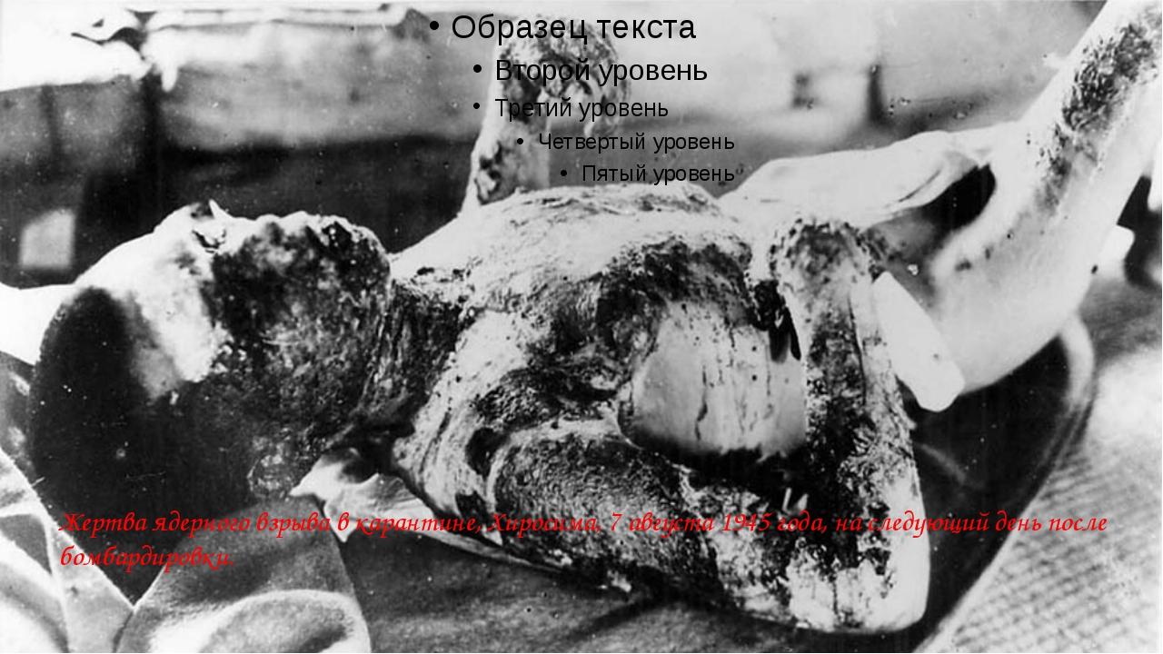 Жертва ядерного взрыва в карантине, Хиросима, 7 августа 1945 года, на следую...