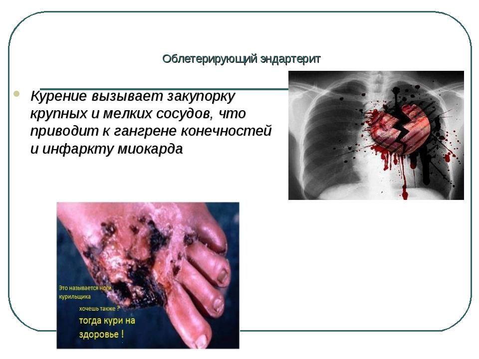 Облетерирующий эндартерит Курение вызывает закупорку крупных и мелких сосудов...