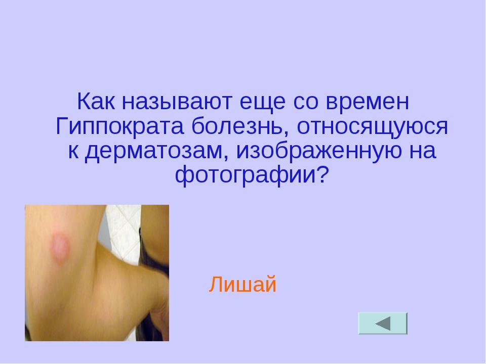 Как называют еще со времен Гиппократа болезнь, относящуюся к дерматозам, изоб...