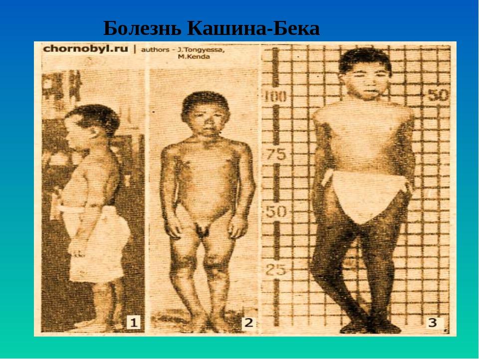Болезнь Кашина-Бека