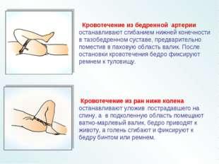 Кровотечение из бедренной артерии останавливают сгибанием нижней конечности