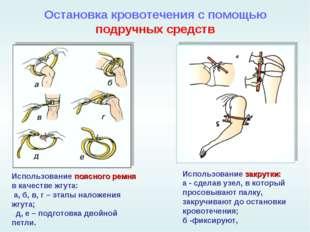 Остановка кровотечения с помощью подручных средств Использование поясного рем