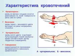 Характеристика кровотечений Капиллярное : кровь из мелких сосудов сочится рав
