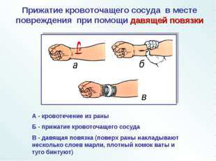 А - кровотечение из раны Б - прижатие кровоточащего сосуда В - давящая повязк