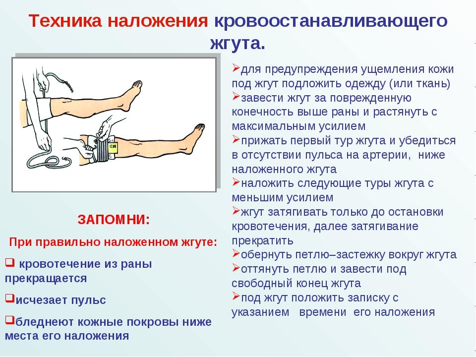 для предупреждения ущемления кожи под жгут подложить одежду (или ткань) заве...