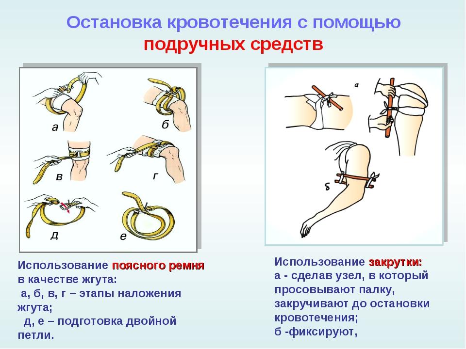Остановка кровотечения с помощью подручных средств Использование поясного рем...