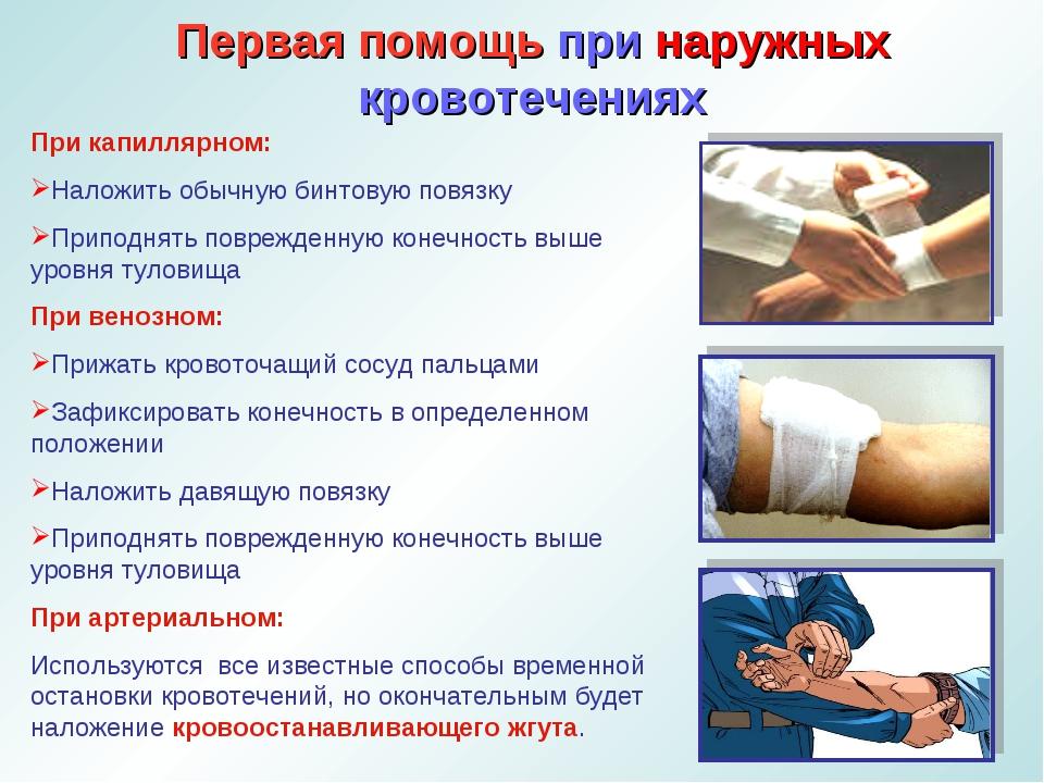 Первая помощь при наружных кровотечениях При капиллярном: Наложить обычную би...