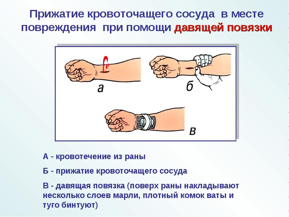 А - кровотечение из раны Б - прижатие кровоточащего сосуда В - давящая повязк...