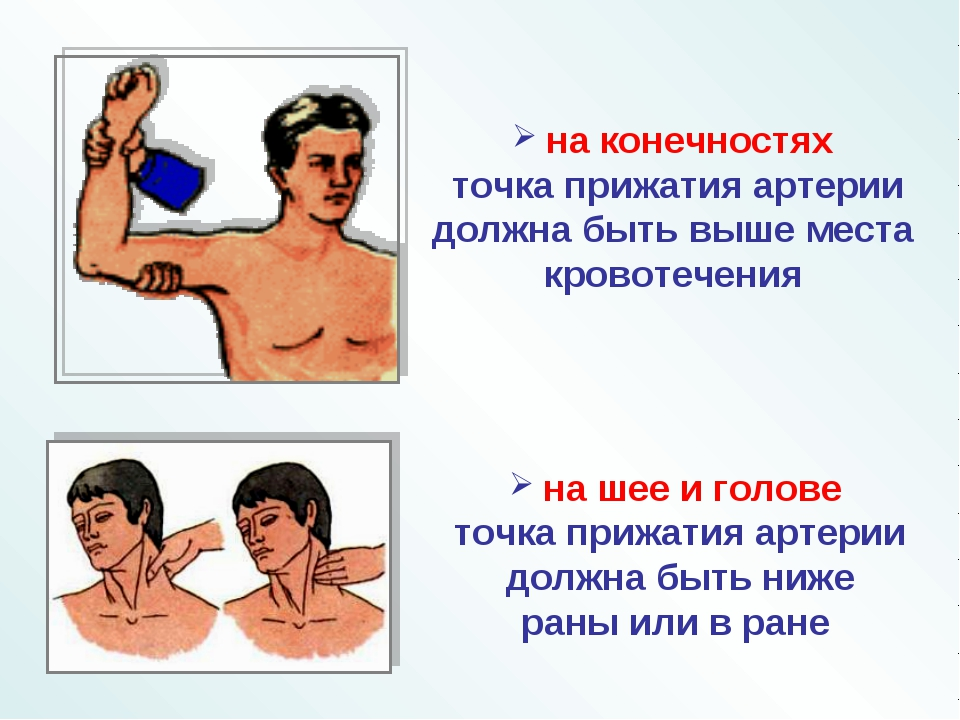 на шее и голове точка прижатия артерии должна быть ниже раны или в ране на к...