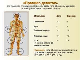 «Правило девяток» для подсчета площади ожогов, если части тела обожжены целик