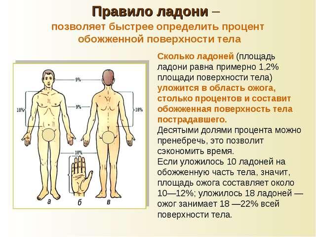 Сколько ладоней (площадь ладони равна примерно 1,2% площади поверхности тела)...