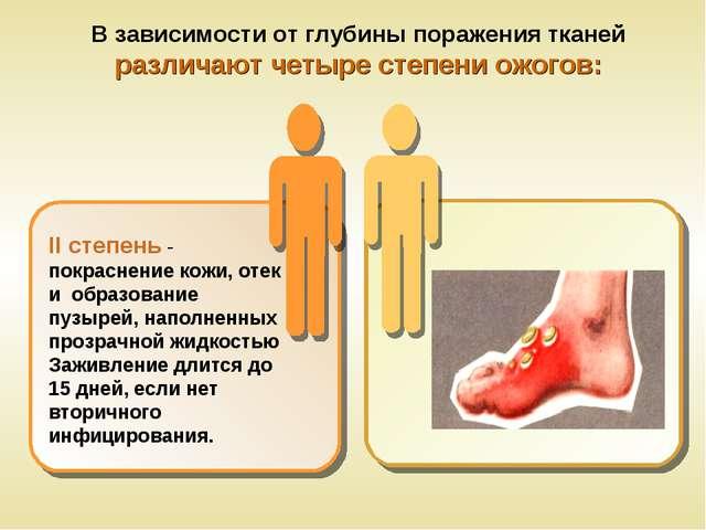 В зависимости от глубины поражения тканей различают четыре степени ожогов: