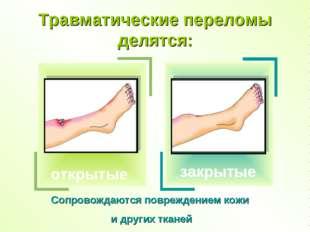 Травматические переломы делятся: закрытые Сопровождаются повреждением кожи и